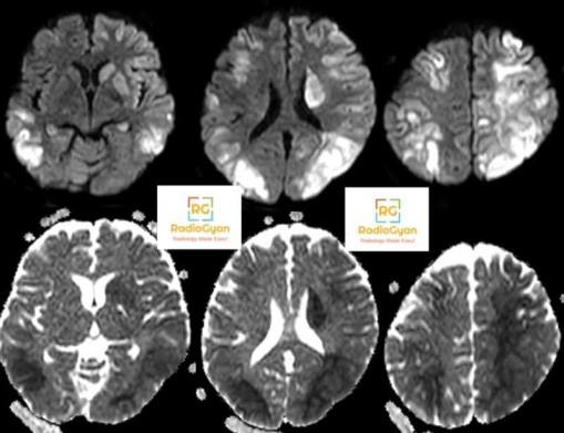 Hypoxic ischemic encephalopathy Radiology