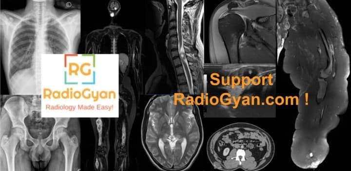 Support RadioGyan,com