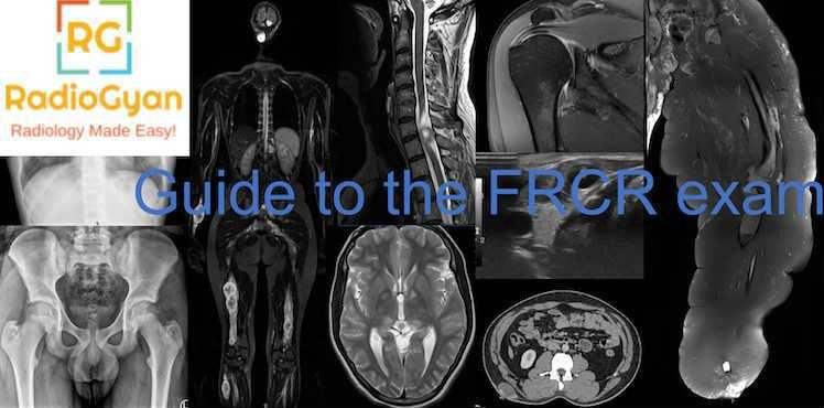 Guide to the FRCR exam RadioGyan.com
