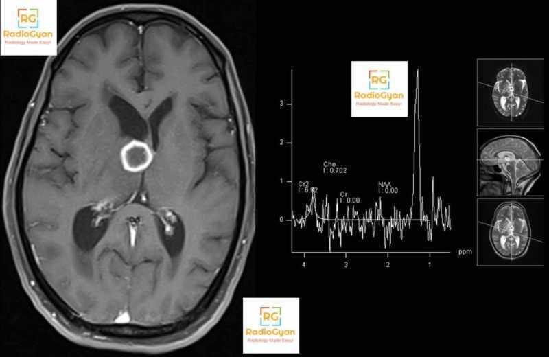 Radiology Spotters set 15- RadioGyan.com